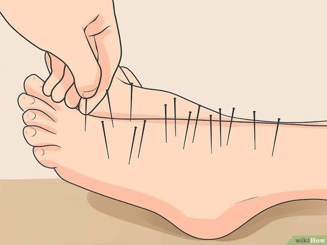 5 Ways To Getting Rid Of Neuropathy Pain Naturally