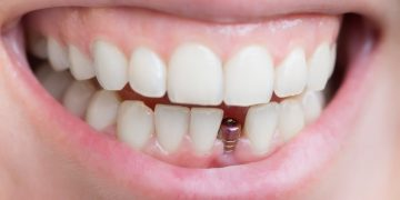 How Will You Know That You Need A Dental Implant