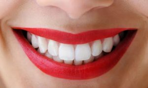 Importance of a Beautiful Smile