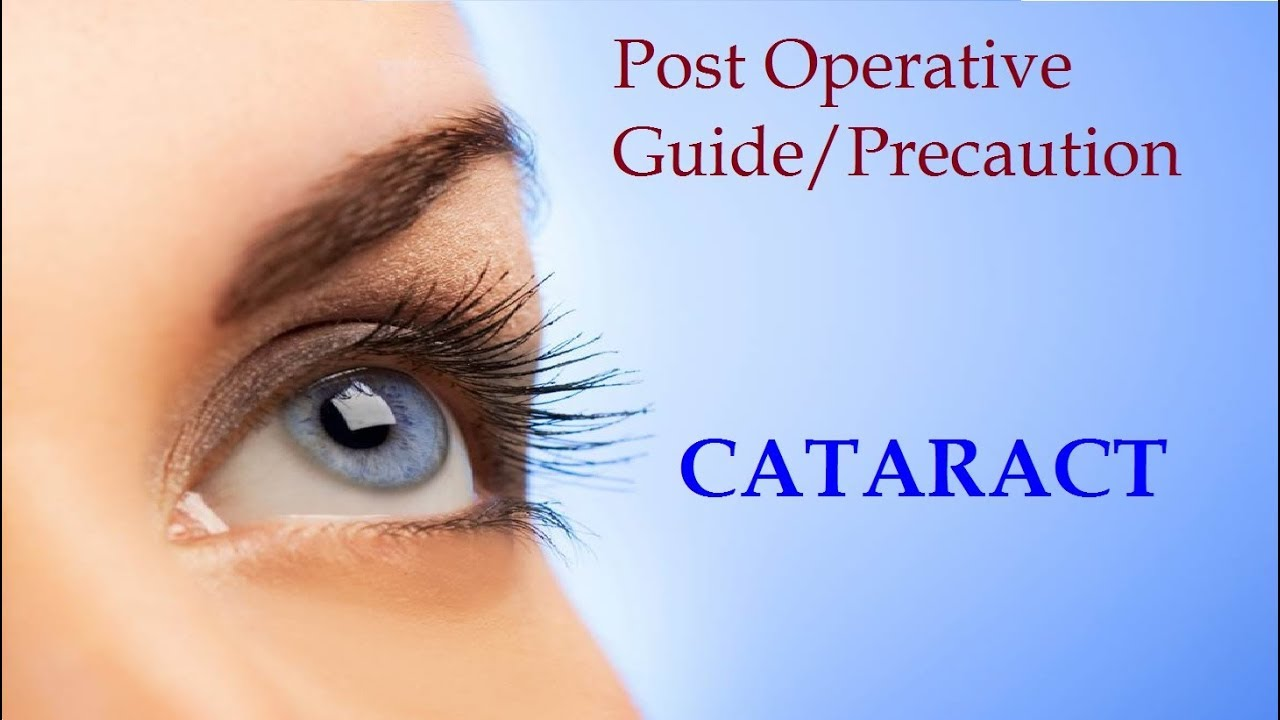 A Guide on What to Do After Cataract Eye Surgery