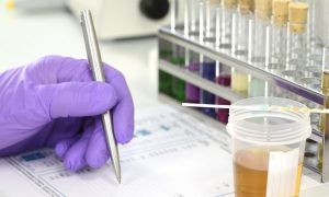 What's Involved in a Drug Test for Employment?